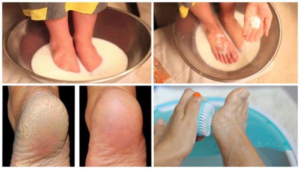 Ne trošite novac na pedikuru:Samo 2 sastojka i stopala će biti prelijepa!