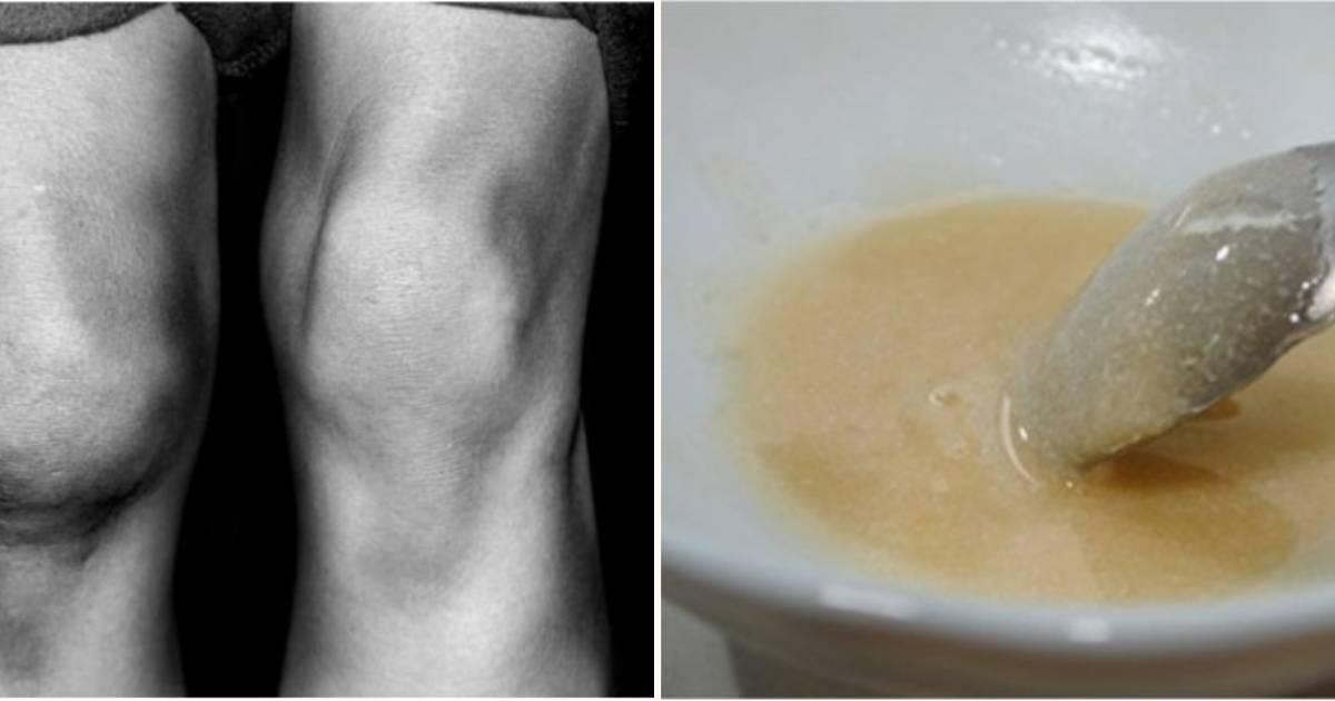 Uz pomoć ove masti za nekoliko dana ćete se riješiti bolova u zglobovima i
