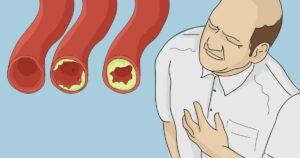 VAŽNE NAMIRNICE ZA ČIŠĆENJE ARTERIJA i prevenciju infarkta!